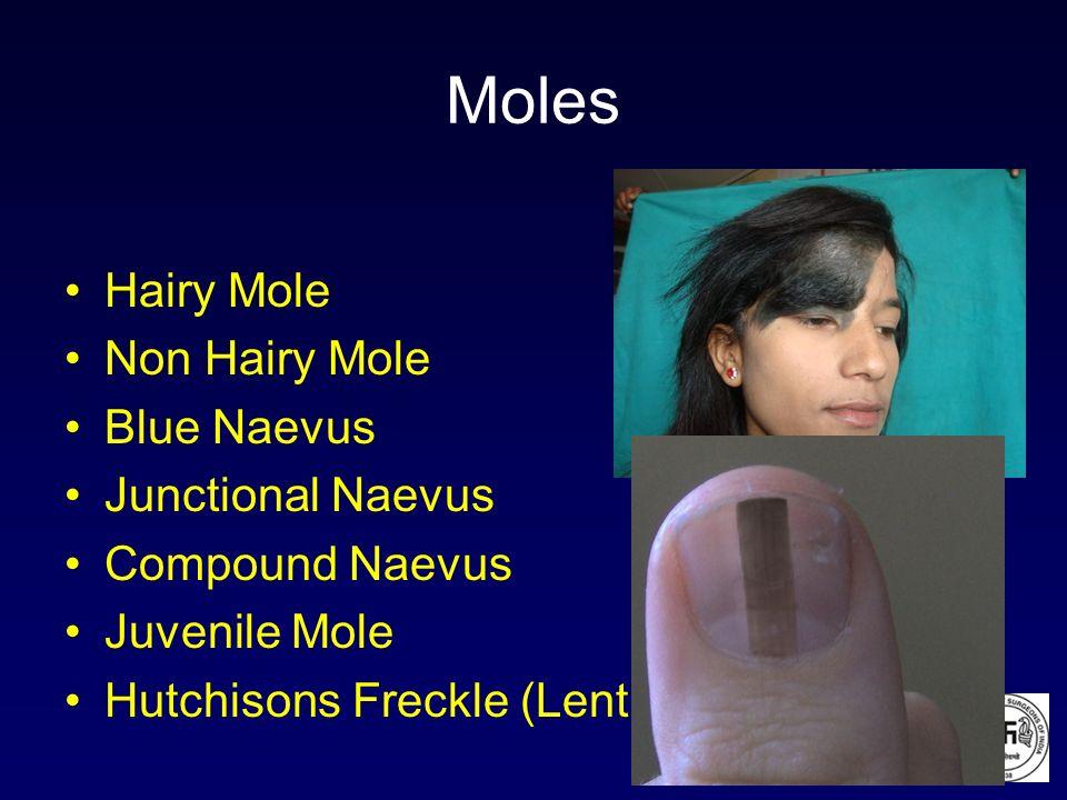 Moles Hairy Mole Non Hairy Mole Blue Naevus Junctional Naevus Compound Naevus Juvenile Mole Hutchisons Freckle (Lentigo)