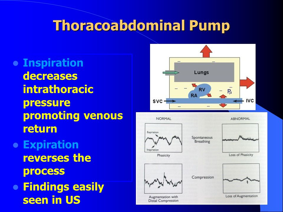 Thoracoabdominal Pump Inspiration decreases intrathoracic pressure promoting venous return Expiration reverses the process Findings easily seen in US