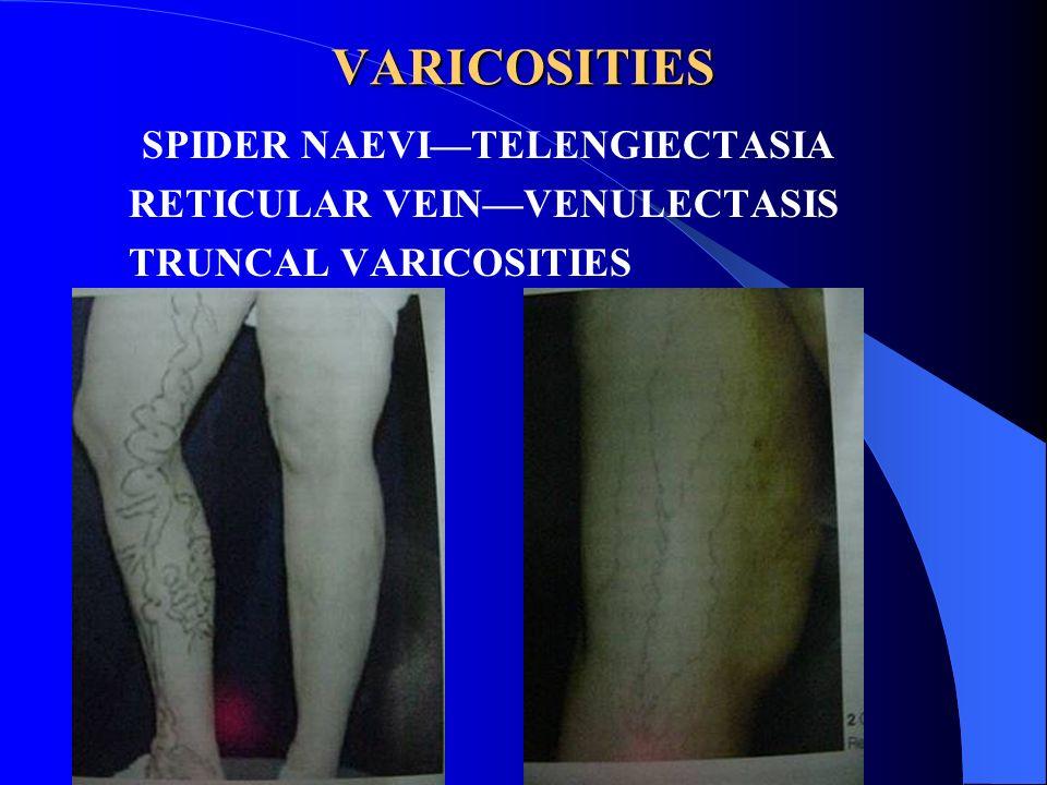 VARICOSITIES SPIDER NAEVITELENGIECTASIA RETICULAR VEINVENULECTASIS TRUNCAL VARICOSITIES