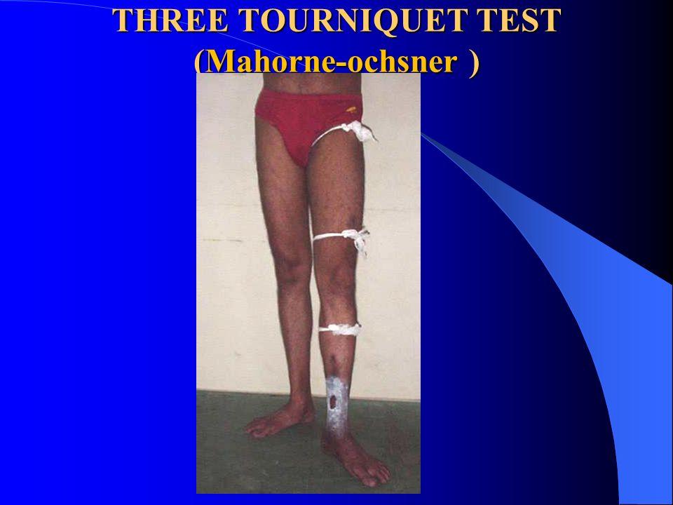 THREE TOURNIQUET TEST (Mahorne-ochsner )