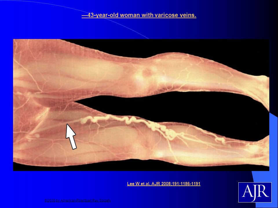 43-year-old woman with varicose veins. Lee W et al. AJR 2008;191:1186-1191 ©2008 by American Roentgen Ray Society
