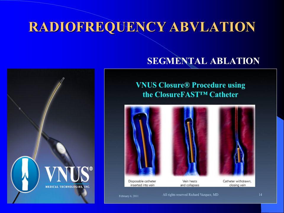 RADIOFREQUENCY ABVLATION SEGMENTAL ABLATION