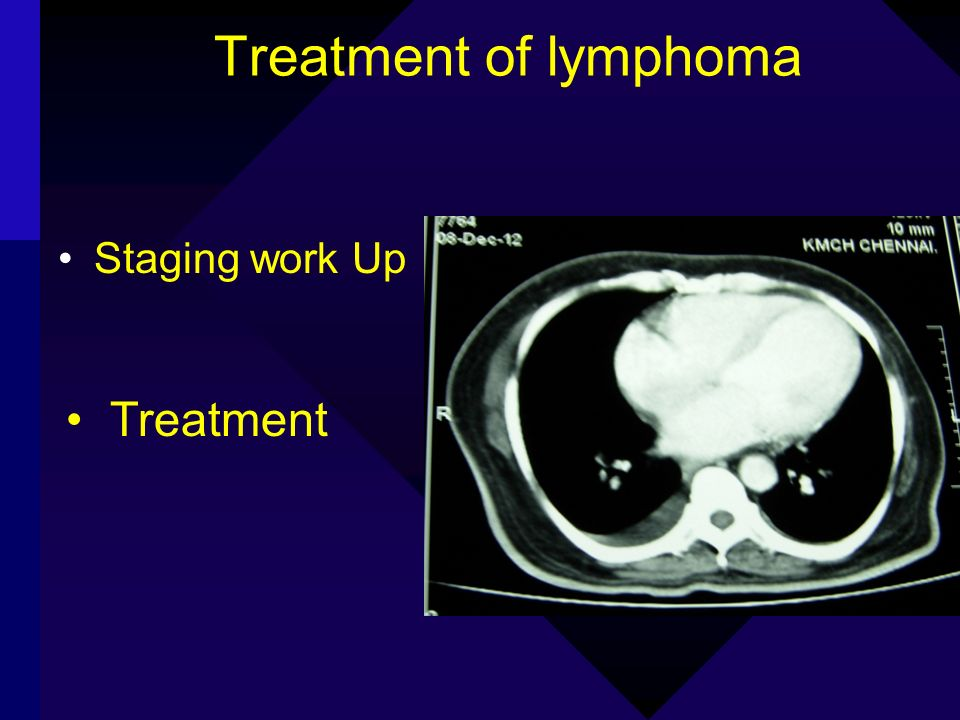Treatment of lymphoma Staging work Up Treatment Staging work Up Treatment