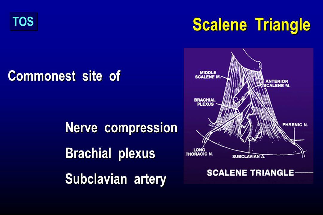 Scalene Triangle Commonest site of Nerve compression Brachial plexus Subclavian artery Commonest site of Nerve compression Brachial plexus Subclavian