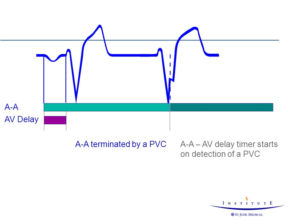 A-A terminated by a PVCA-A – AV delay timer starts on detection of a PVC A-A AV Delay