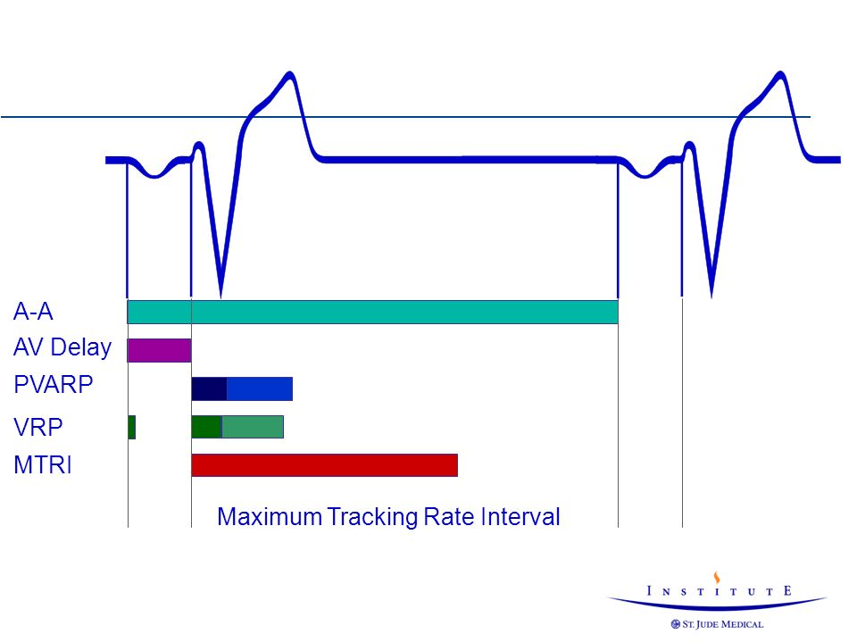 A-A PVARP VRP MTRI Maximum Tracking Rate Interval AV Delay