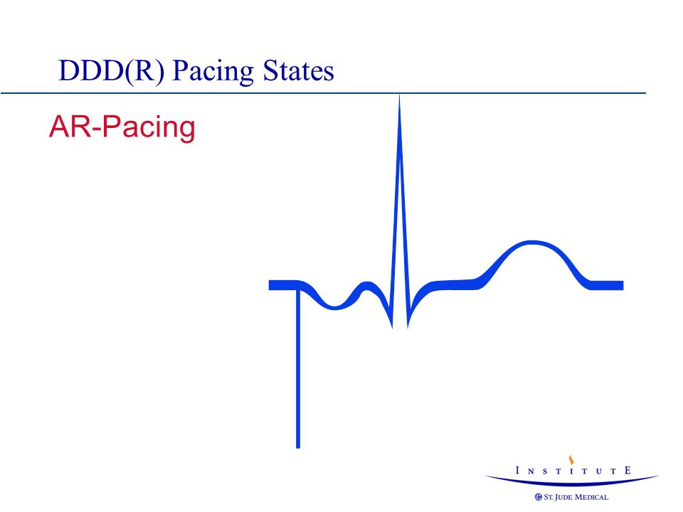AR-Pacing DDD(R) Pacing States