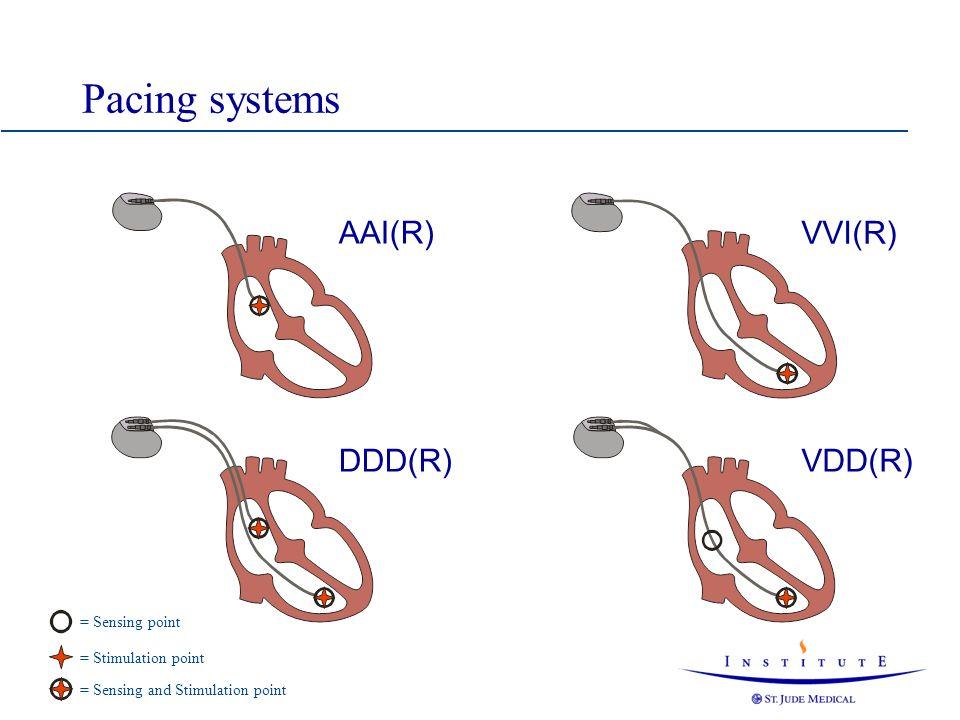 Maximum Tracking Rate Interval A-A PVARP VRP MTRI AV Delay
