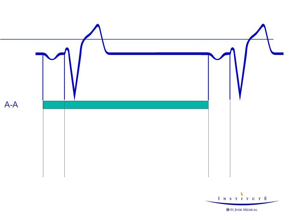 HOCM Hypertrophic Obstructive CardioMyopathy