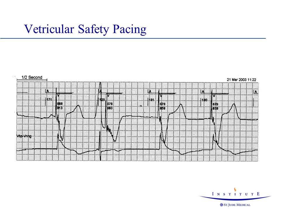 Vetricular Safety Pacing