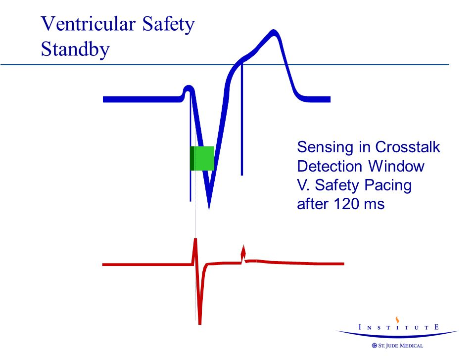 Ventricular Safety Standby Sensing in Crosstalk Detection Window V. Safety Pacing after 120 ms