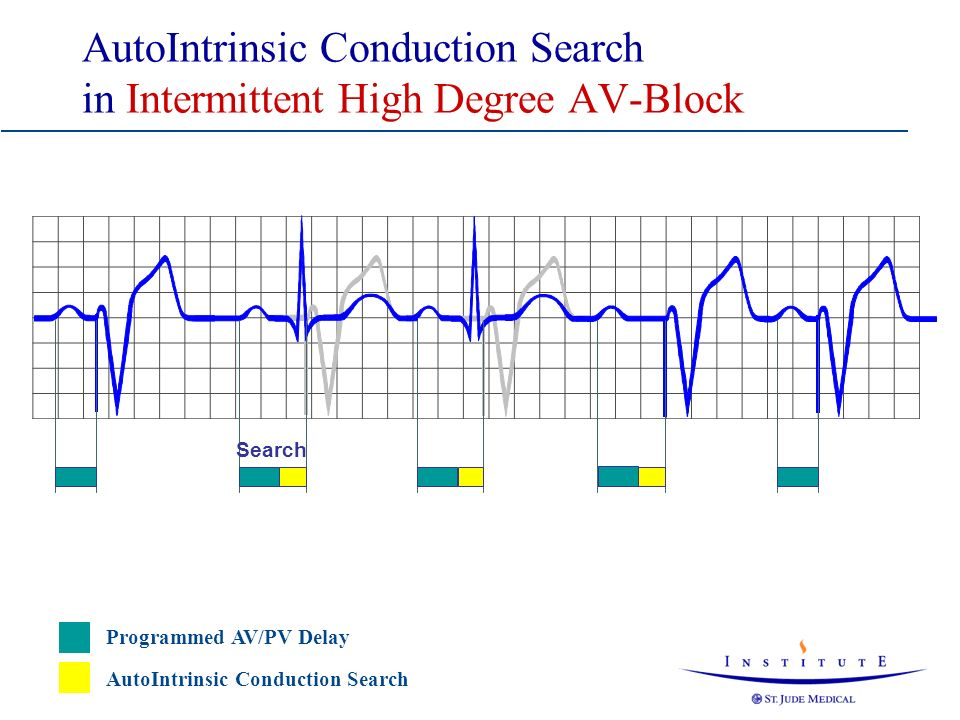 AutoIntrinsic Conduction Search in Intermittent High Degree AV-Block 150 ms Search 150+100 ms 150 ms Programmed AV/PV Delay AutoIntrinsic Conduction S