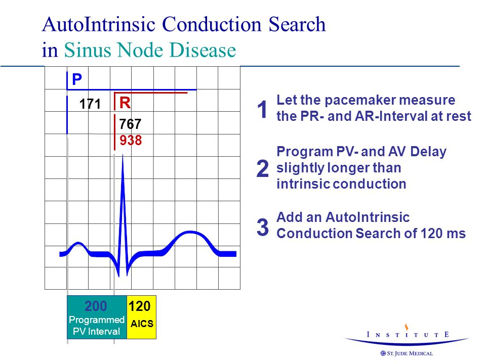 AutoIntrinsic Conduction Search in Sinus Node Disease 120 AICS P R 171 767 938 200 Programmed PV Interval Let the pacemaker measure the PR- and AR-Int