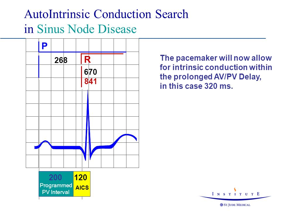 AutoIntrinsic Conduction Search in Sinus Node Disease P R 268 670 841 200 Programmed PV Interval The pacemaker will now allow for intrinsic conduction