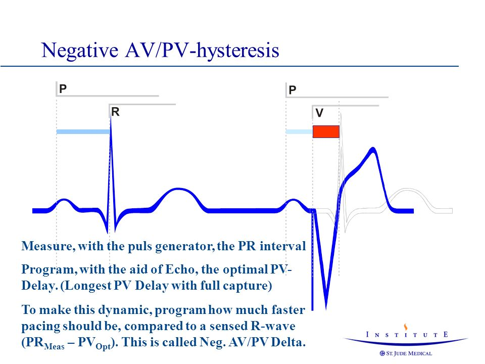 Negative AV/PV-hysteresis Measure, with the puls generator, the PR interval Program, with the aid of Echo, the optimal PV- Delay. (Longest PV Delay wi