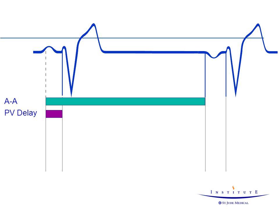 Negative AV/PV-Hysteresis 124 ms Neg.