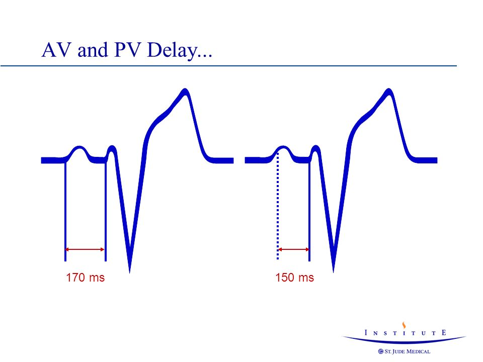 AV and PV interval...Late atrial activation 150 ms 250 ms The AV Delay can be programmed max.