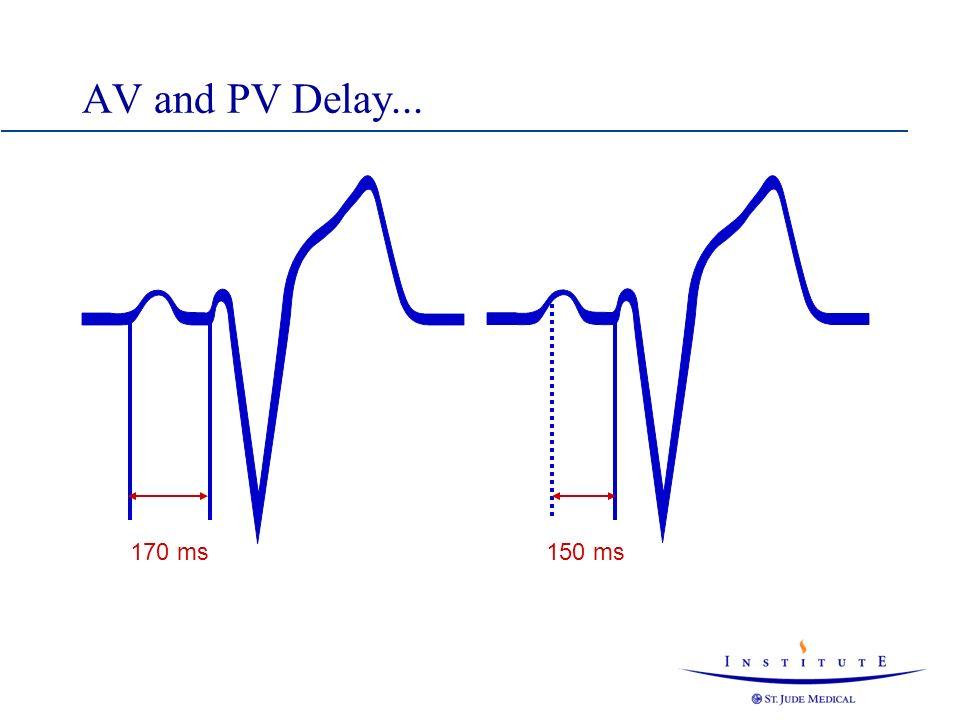 AV -Pacing AR -Pacing PV -Pacing PR -Pacing DDD(R) Pacing States