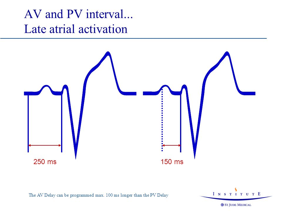 AutoIntrinsic Conduction Search in Intermittent High Degree AV-Block 150 ms Search 150+100 ms 150 ms Programmed AV/PV Delay AutoIntrinsic Conduction Search