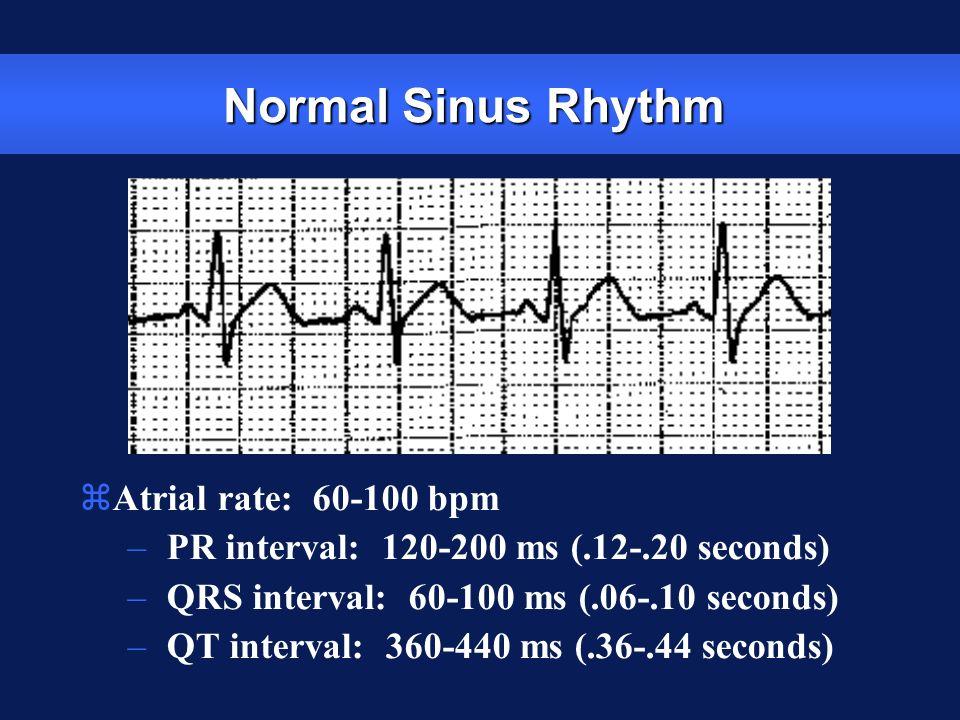 Normal Sinus Rhythm zAtrial rate: 60-100 bpm – PR interval: 120-200 ms (.12-.20 seconds) – QRS interval: 60-100 ms (.06-.10 seconds) – QT interval: 36