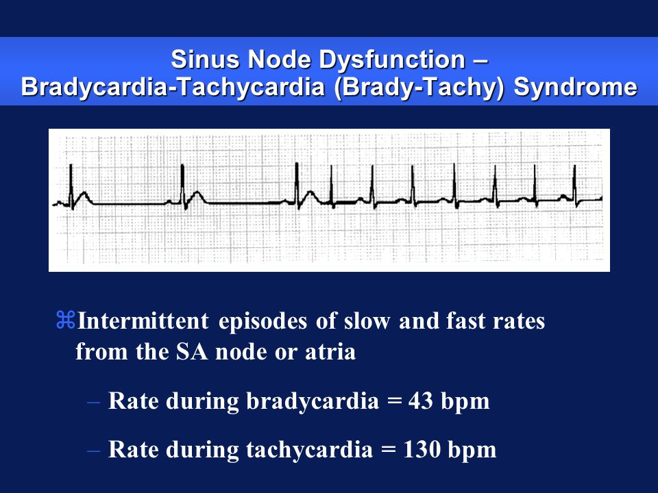 Sinus Node Dysfunction – Bradycardia-Tachycardia (Brady-Tachy) Syndrome zIntermittent episodes of slow and fast rates from the SA node or atria –Rate