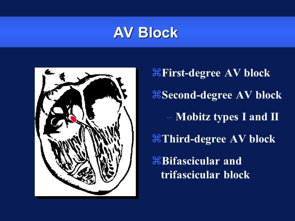 AV Block zFirst-degree AV block zSecond-degree AV block –Mobitz types I and II zThird-degree AV block zBifascicular and trifascicular block