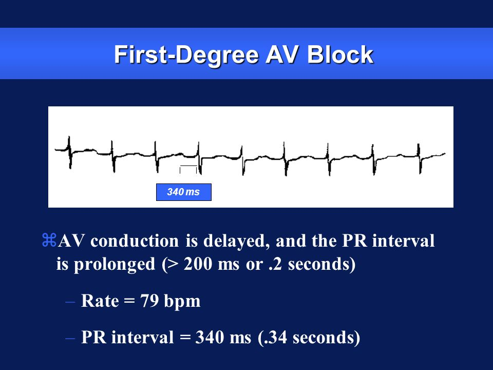 First-Degree AV Block zAV conduction is delayed, and the PR interval is prolonged (> 200 ms or.2 seconds) –Rate = 79 bpm –PR interval = 340 ms (.34 se