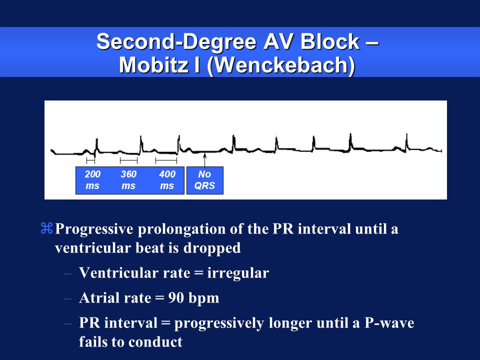 Second-Degree AV Block – Mobitz I (Wenckebach) zProgressive prolongation of the PR interval until a ventricular beat is dropped –Ventricular rate = ir