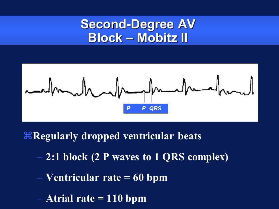Second-Degree AV Block – Mobitz II zRegularly dropped ventricular beats –2:1 block (2 P waves to 1 QRS complex) –Ventricular rate = 60 bpm –Atrial rat