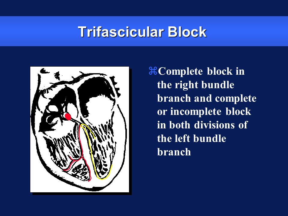 Trifascicular Block zComplete block in the right bundle branch and complete or incomplete block in both divisions of the left bundle branch