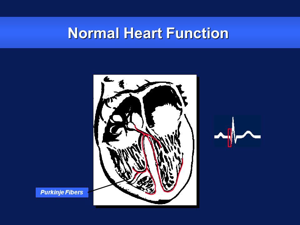 Normal Heart Function Purkinje Fibers