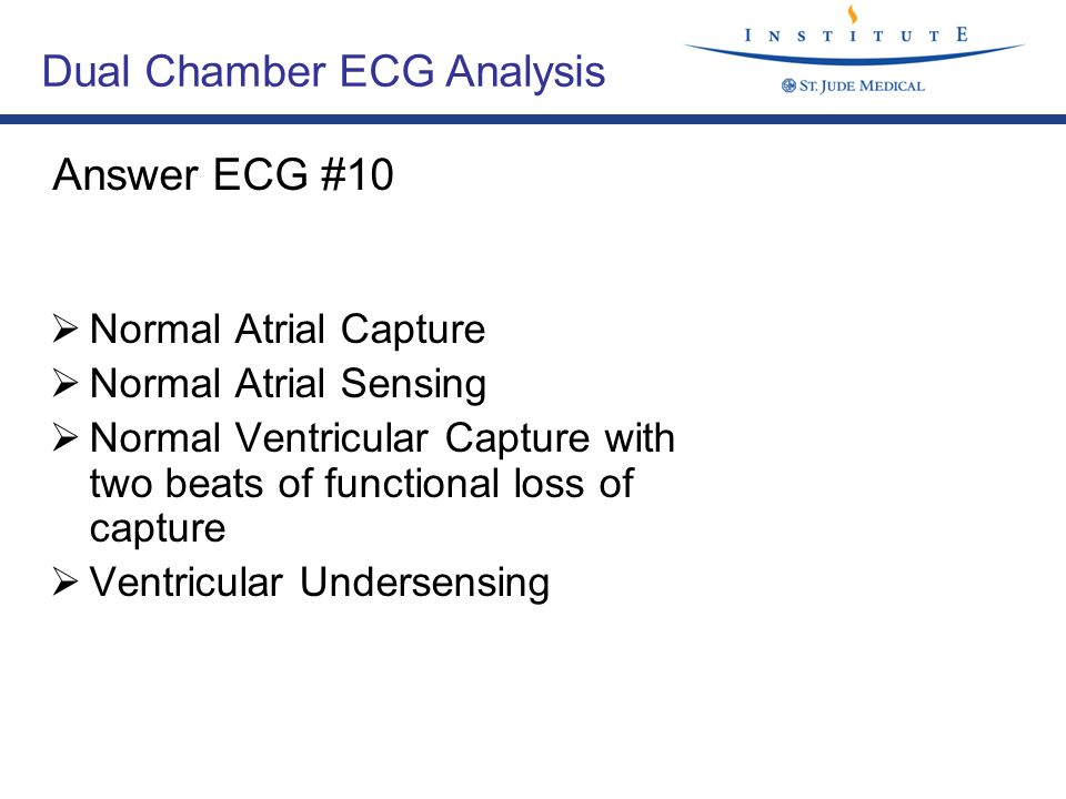 Folie 36, V 1.1 /TK ECGs Normal Atrial Capture Normal Atrial Sensing Normal Ventricular Capture with two beats of functional loss of capture Ventricul