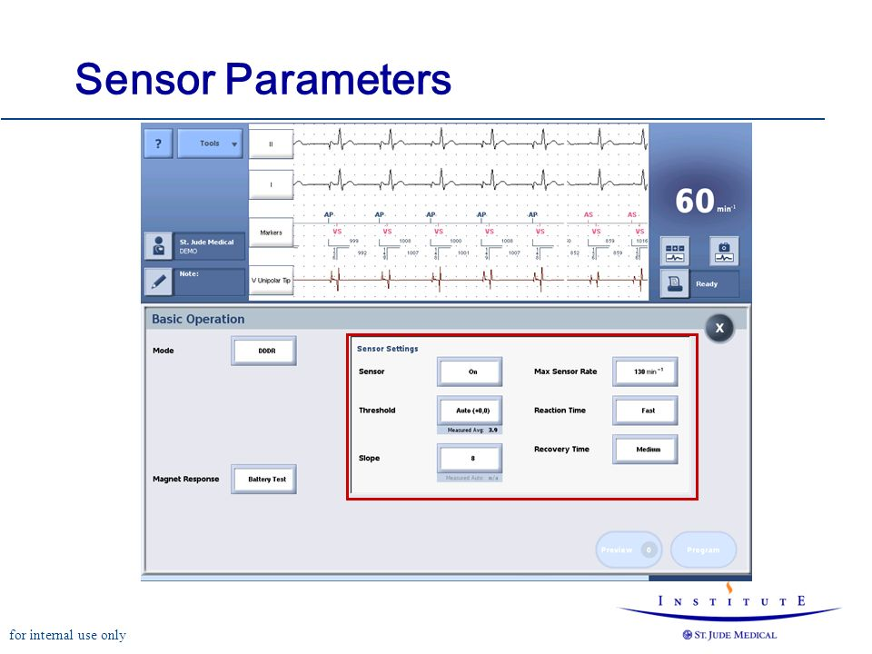 for internal use only Sensor Parameters