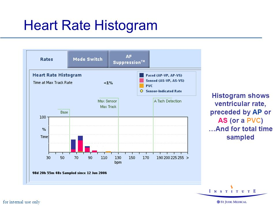 for internal use only Heart Rate Histogram Histogram shows ventricular rate, preceded by AP or AS (or a PVC) …And for total time sampled