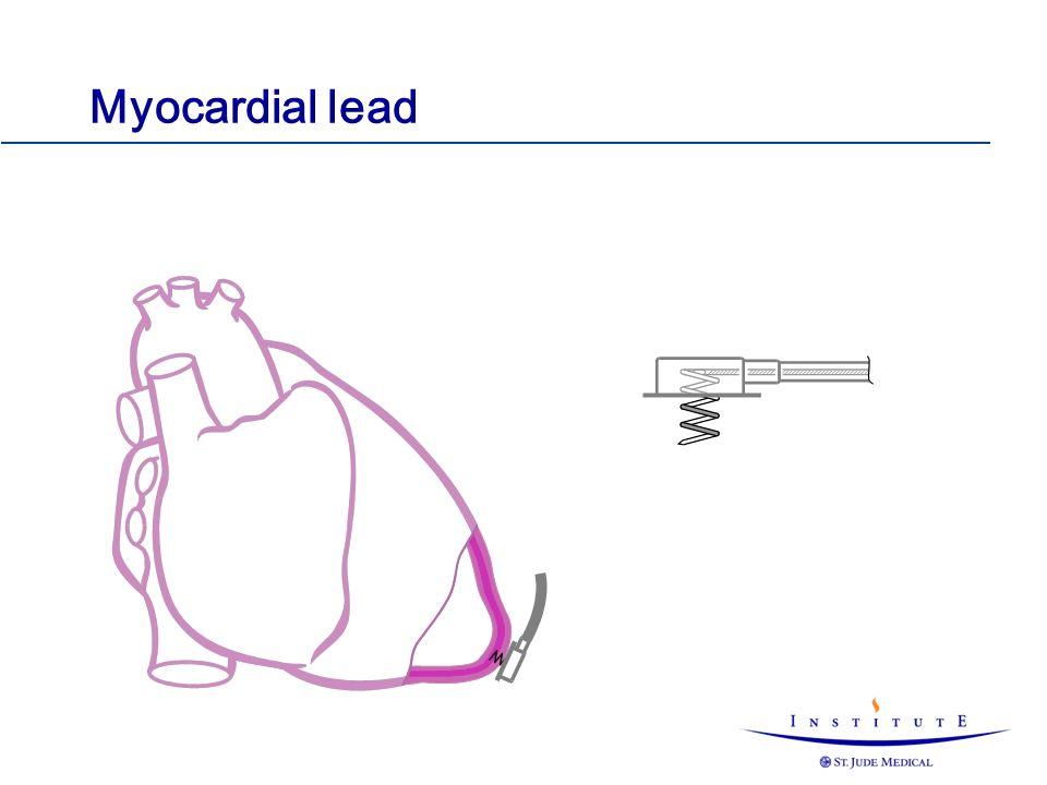 Myocardial lead