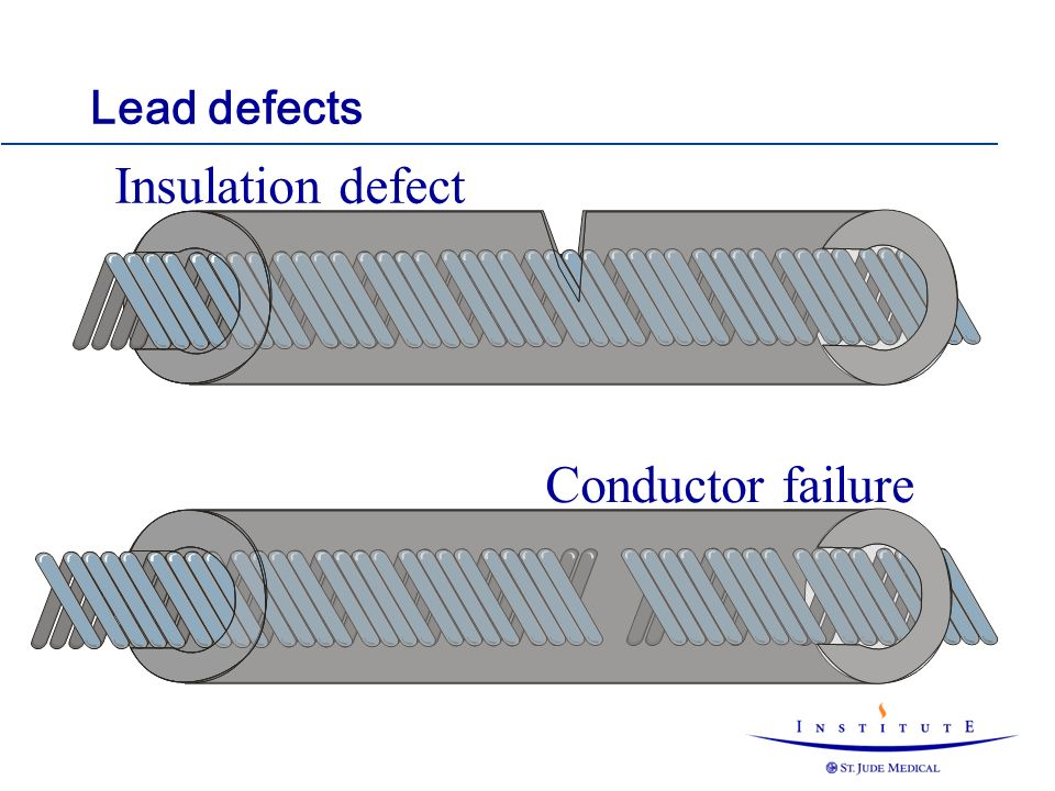 Insulation defect Conductor failure Lead defects