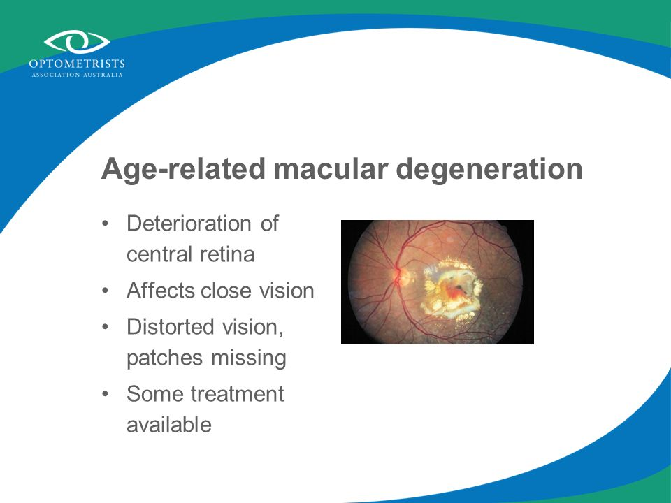 Age-related macular degeneration Deterioration of central retina Affects close vision Distorted vision, patches missing Some treatment available
