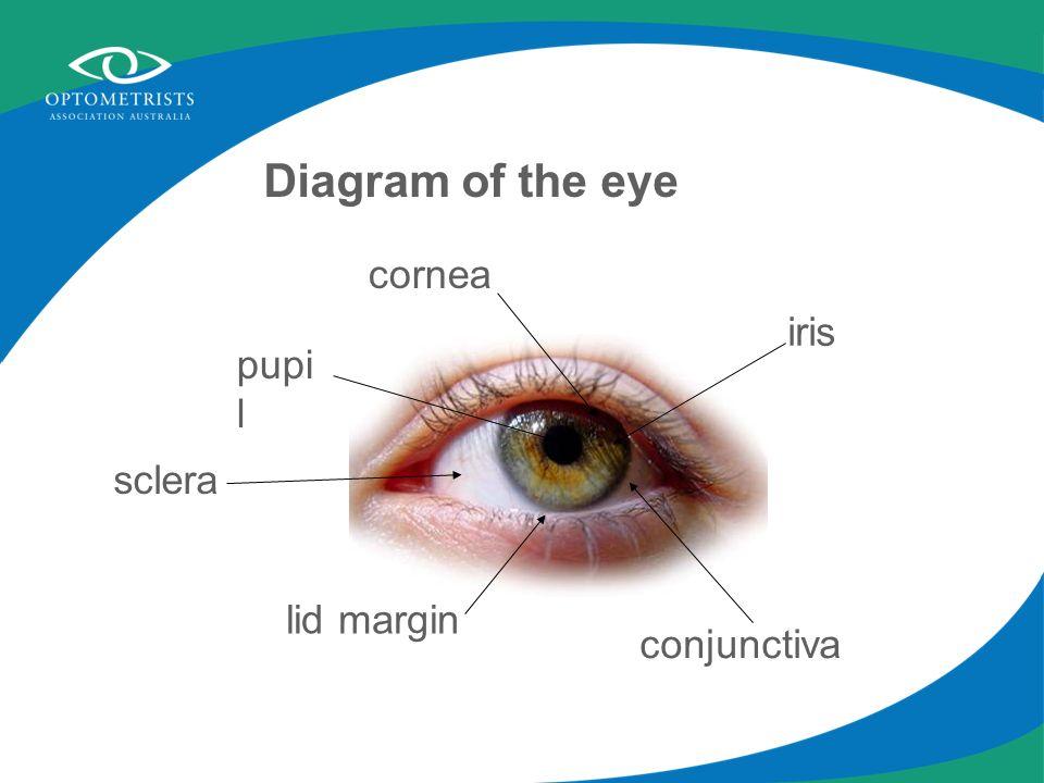 lid margin iris cornea conjunctiva sclera pupi l Diagram of the eye