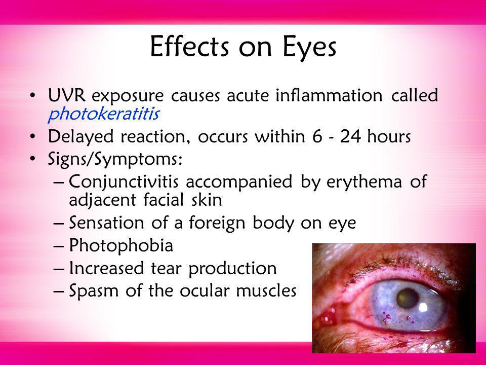 Effects on Eyes UVR exposure causes acute inflammation called photokeratitis Delayed reaction, occurs within 6 - 24 hours Signs/Symptoms: – Conjunctiv