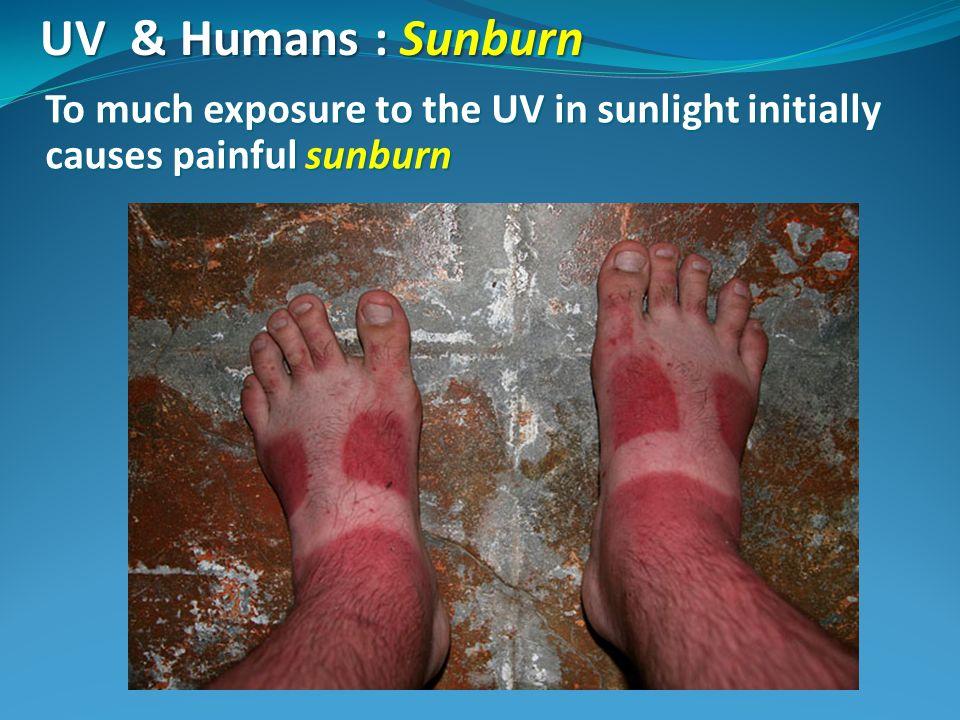 UV & Humans : Sunburn To much exposure to the UV in sunlight initially causes painful sunburn