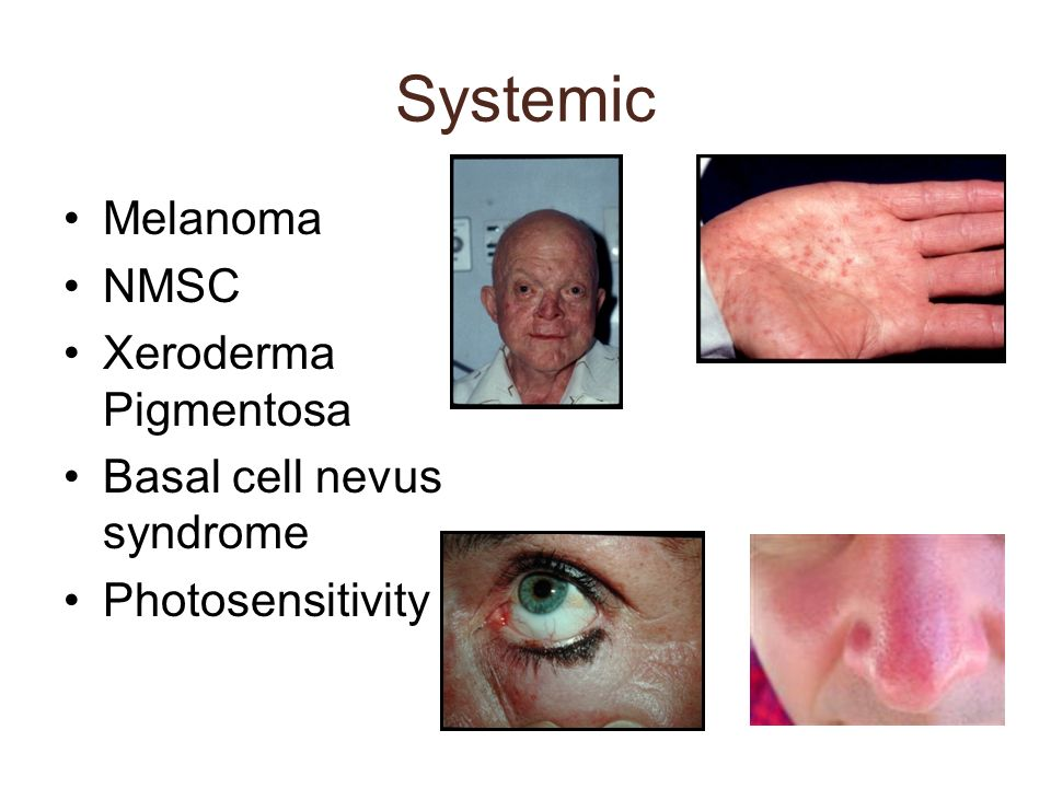 Systemic Melanoma NMSC Xeroderma Pigmentosa Basal cell nevus syndrome Photosensitivity