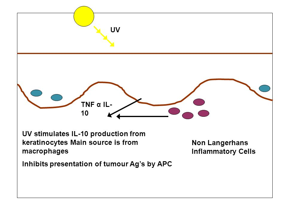 UV Non Langerhans Inflammatory Cells TNF α IL- 10 UV stimulates IL-10 production from keratinocytes Main source is from macrophages Inhibits presentat