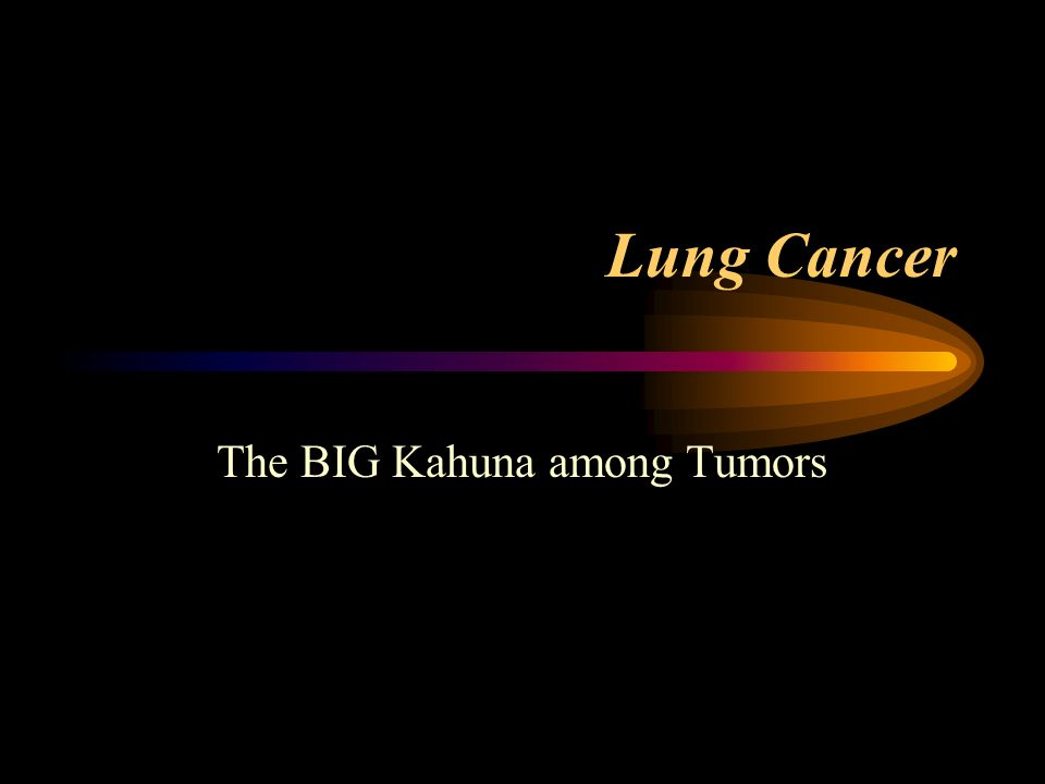 Why is Lung Cancer the BIG Kahuna.