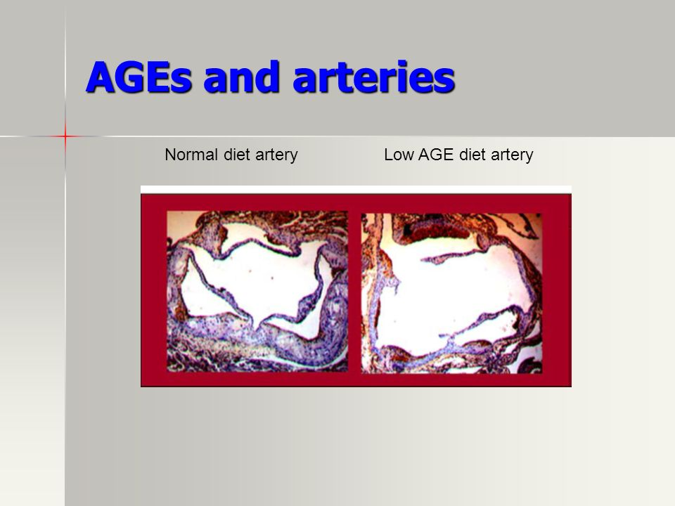 AGEs and arteries Normal diet arteryLow AGE diet artery