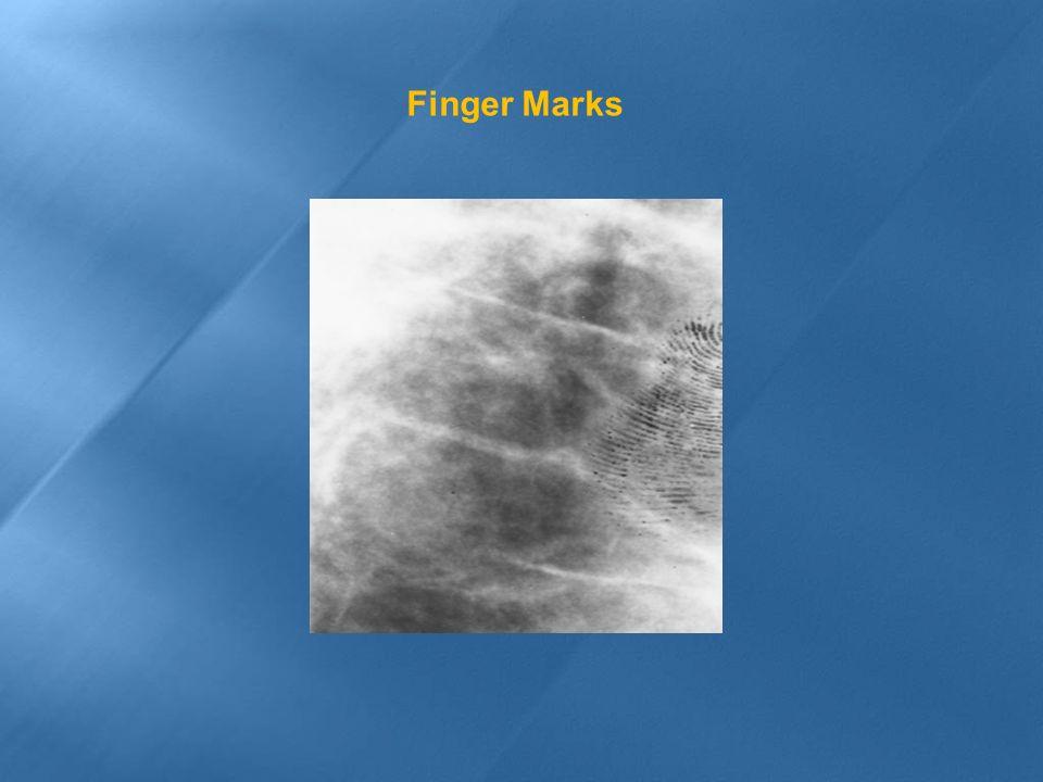 Finger Marks