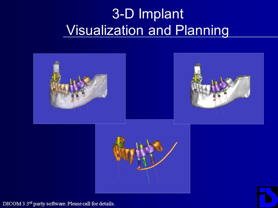 14 3-D Implant Visualization and Planning DICOM 3 3 rd party software. Please call for details.