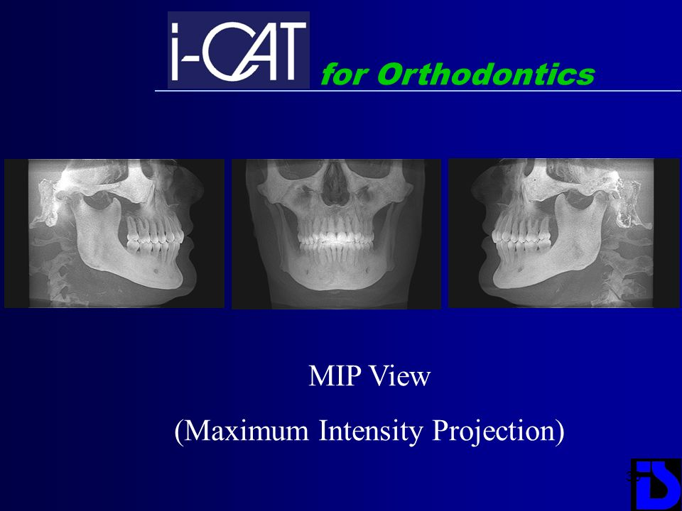 30 for Orthodontics MIP View (Maximum Intensity Projection)