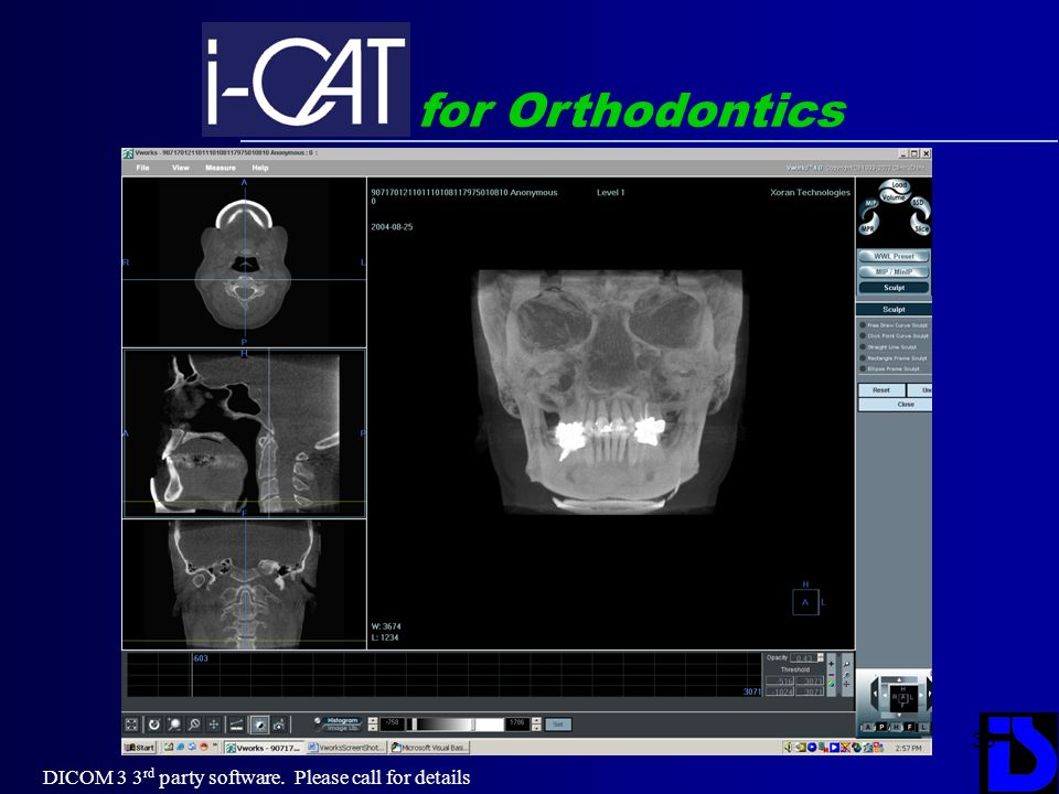 33 for Orthodontics DICOM 3 3 rd party software. Please call for details
