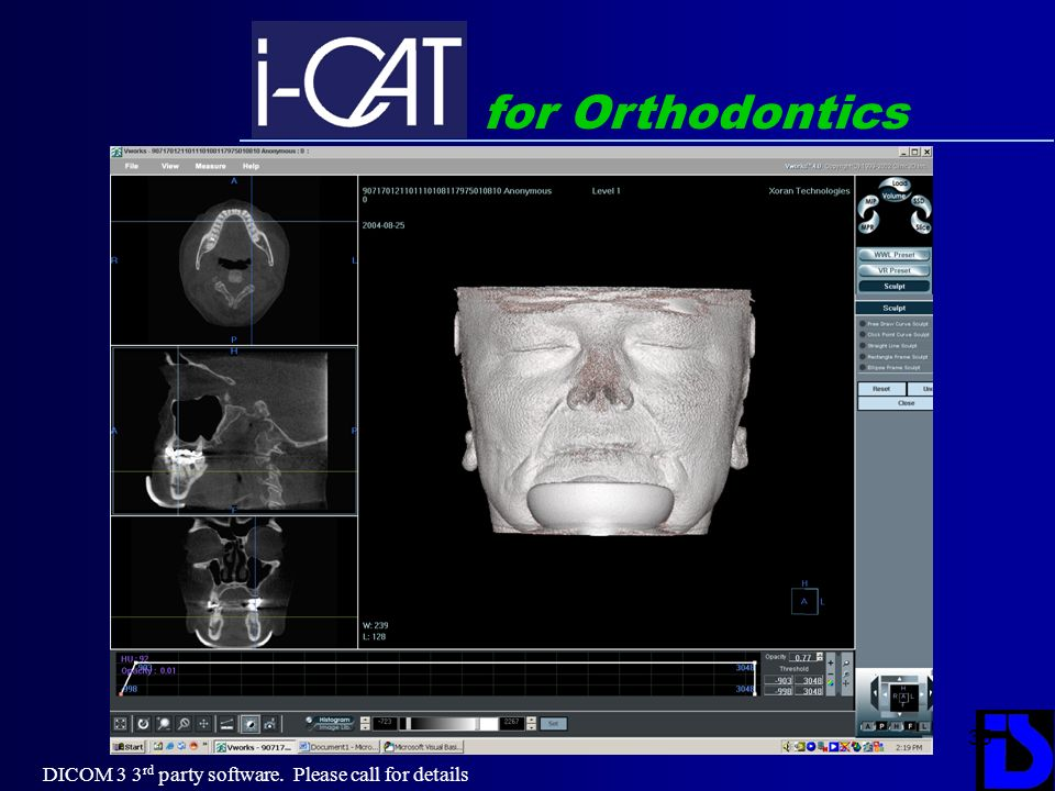 35 for Orthodontics DICOM 3 3 rd party software. Please call for details