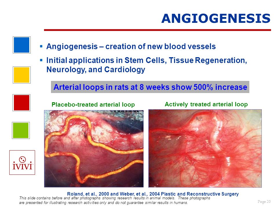 Page 20 Angiogenesis – creation of new blood vessels Initial applications in Stem Cells, Tissue Regeneration, Neurology, and Cardiology ANGIOGENESIS P
